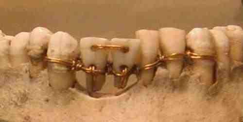 Seno ēģiptiešu zobārstu veikums, liekot lietā zelta stiepli